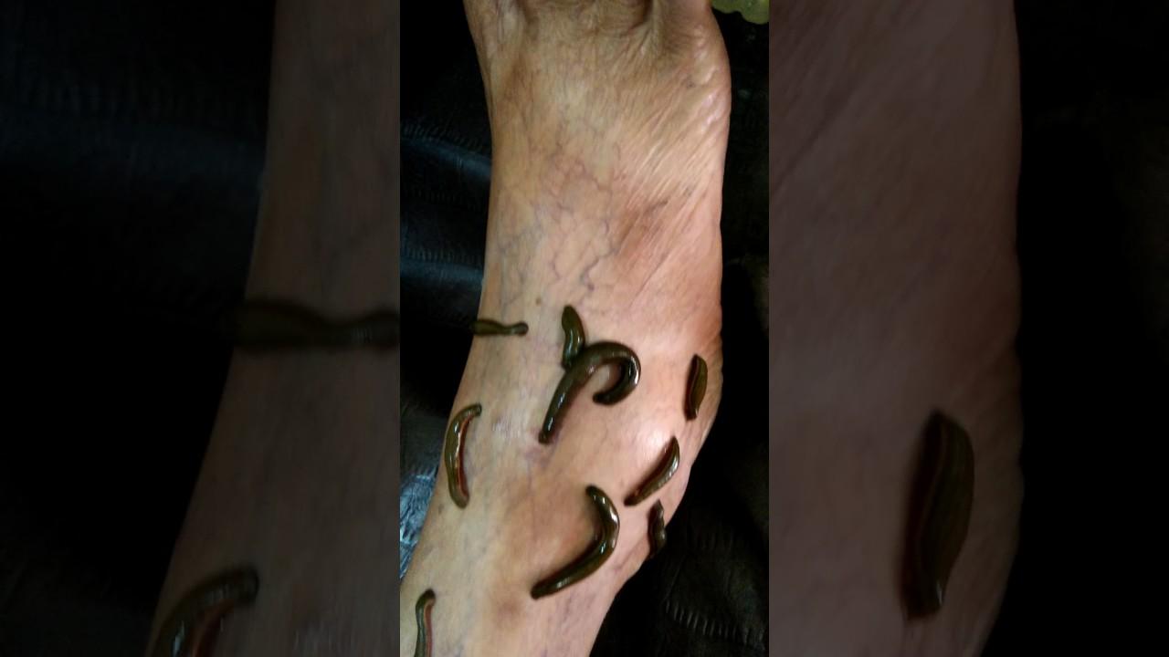 ginseng cu vene varicoase varicoză copaci