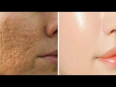 7 DAYS AND ALL OPEN PORES WILL DISAPPEAR FROM YOUR SKIN FOREVER | THE SECRET TO SHRINK LARGE PORES