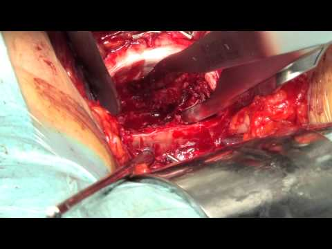 arthroplastie lombaire - Prothèse de disque lombaire Dr Robin Srour