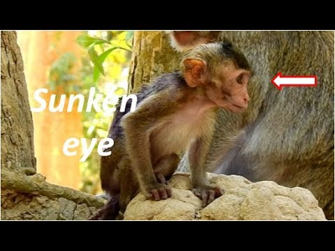 OMG | poorest baby Janna very skinny & sunken eye | | Jane ...