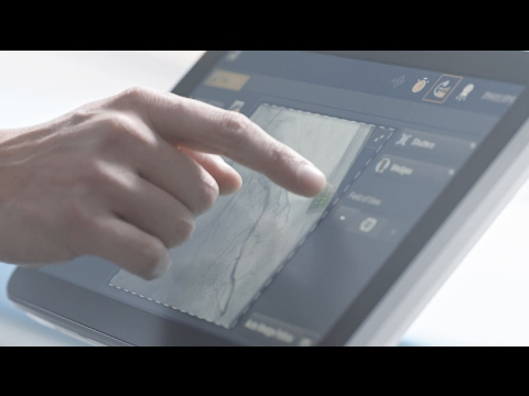 Philips Azurion. Key product features and system design