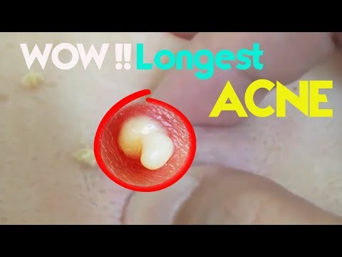 Cysitc Acne, Pimples And Blackheads Extraction Acne Treatment On Face!!!200317