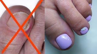 Вросшие ногти решение проблемы /педикюр