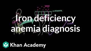 Iron deficency anemia diagnosis | Hematologic System Diseases | NCLEX-RN | Khan Academy