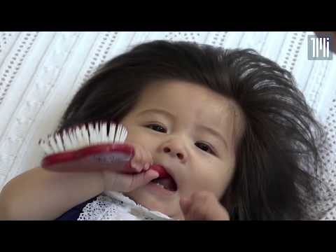 'Exploding hair' baby becomes viral sensation