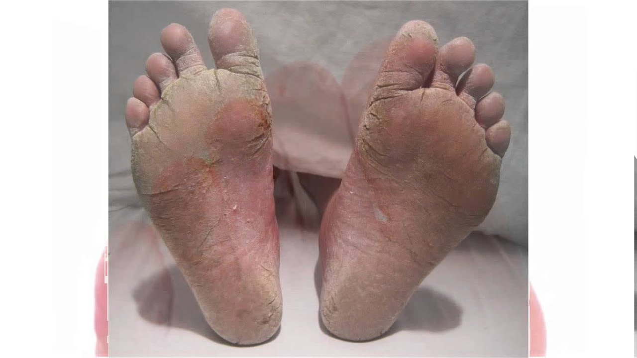 how to know if toenail fungus is dying