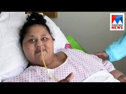 World's 'heaviest' woman Eman Ahmed dies in Abu Dhabi | Manorama News