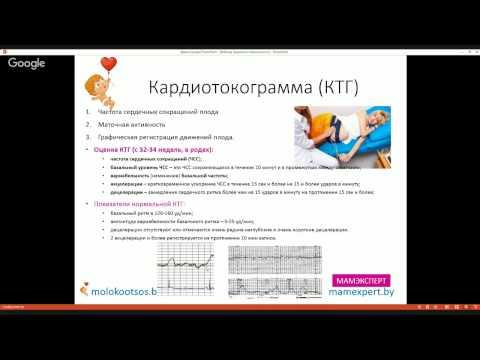 Кардиотокограмма (КТГ): что это такое, как интерпретировать. Фрагмент вебинара Академия Материнства