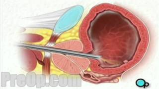 Cystoscopy Male via Penis PreOp® Patient Education Medica Video