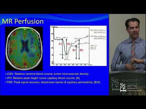 Imaging Advances in Malignant Gliomas - Jerome Graber, MD, MPH