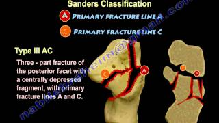 Calcaneal Intra-Articular Fractures, Sanders - Everything You Need To Know - Dr. Nabil Ebraheim