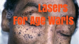 Lasers for age warts and pigmentation