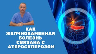 Как желчнокаменная болезнь связана с атеросклерозом