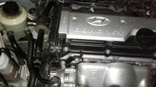 Непонятный звук работы двигателя после замены ремня ГРМ
