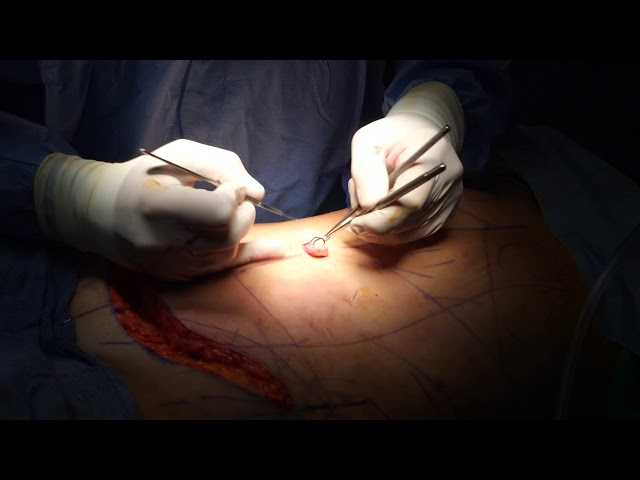 Tummy tuck surgery Part 2 of 2