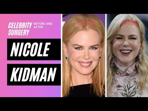 nicole-kidman- -celebrity-plastic-surgery-review-by-rachel-varga