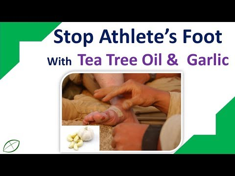 Home Remedies For Athlete's Foot  | Stop Athlete's Foot With  Tea Tree Oil &  Garlic