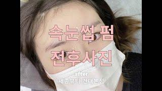 [#건대속눈썹펌] 세종뷰티본점 세종드 강남반영구화장 전…