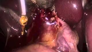 Laparoscopic Removal of Bile Duct Stones During Cholecystectomy Port Macquarie NSW