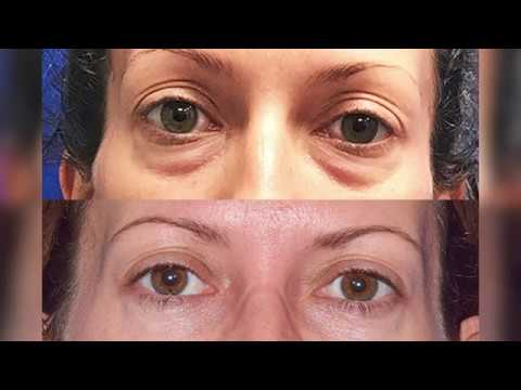 Lower Blepharoplasty by Facial Plastic Surgeon Dr. Robb Jr. (Fat bag removal from the lower eye)