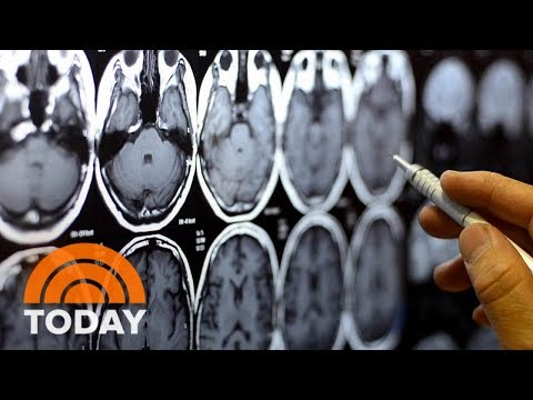 Genetics Determine About Half Of A Person's Predisposition To Addiction | TODAY