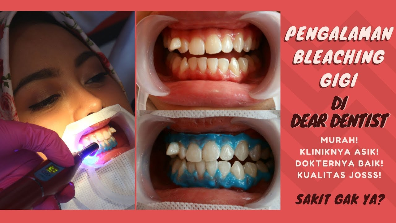 Pengalaman Bleaching Gigi Di Dear Dentist Harga Terjangkau