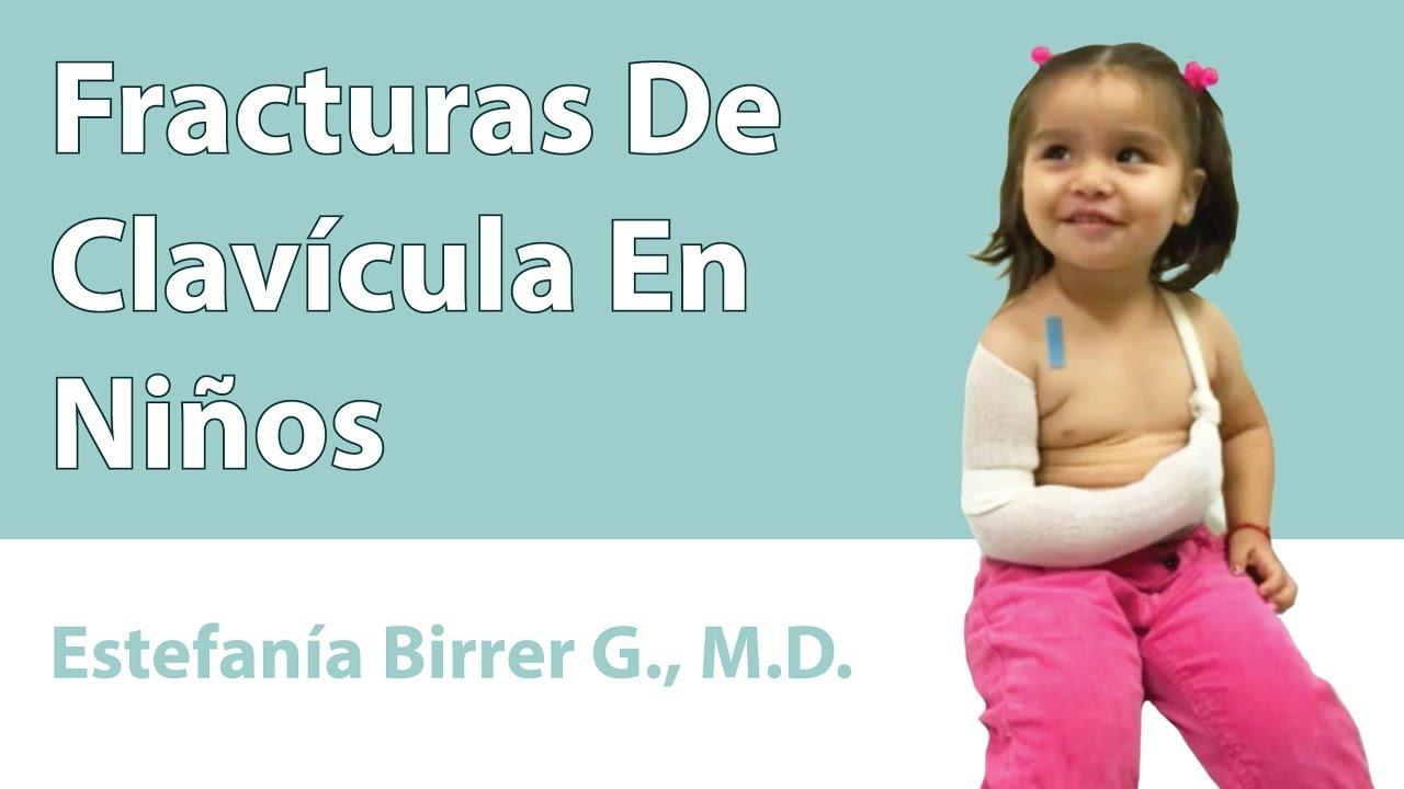 Fracturas De Clavícula En Niños - YouTube ac27da6e9603