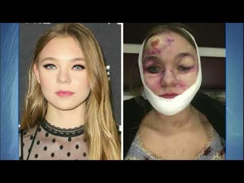 Hora da Venenosa: atriz se acidenta e leva mais de 70 pontos