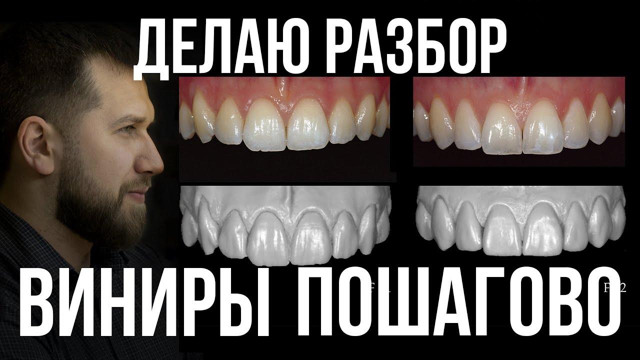 Макет зубов. Препарирование под Виниры для идеальной улыбки