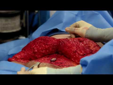 Dr. Widder performs a Tummy tuck