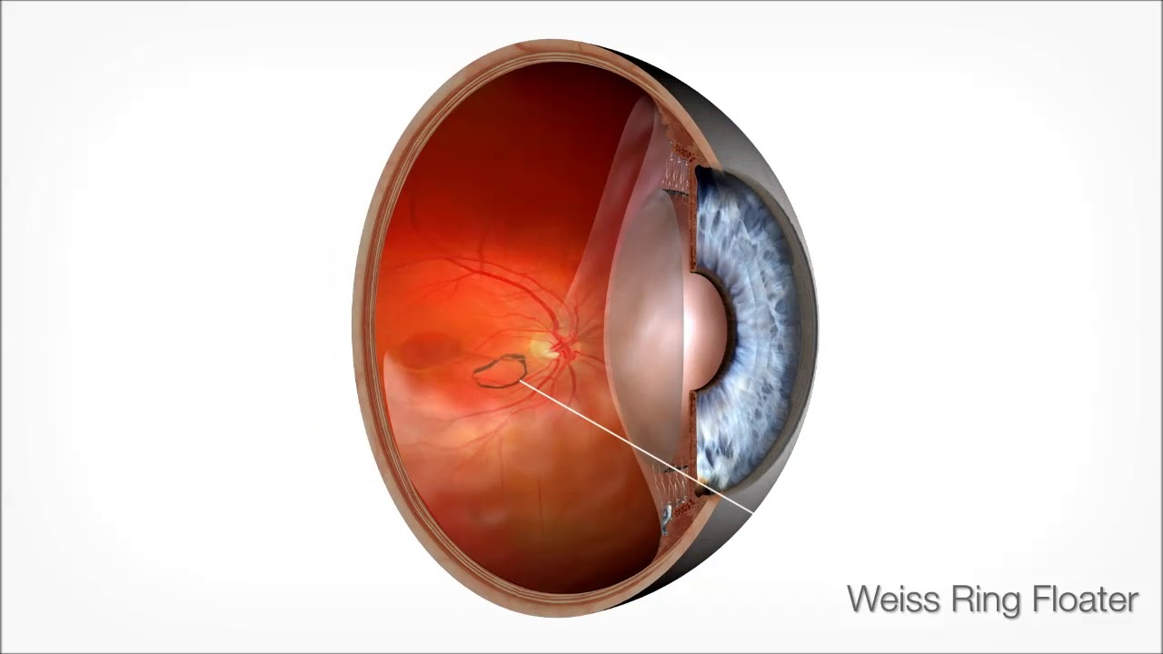 Spector Eye Care | Vitreolysis for Floaters