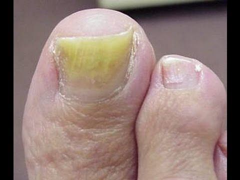 The Best Treatment For Toenail Fungus - Get Rid Of Nail Fungus In ...