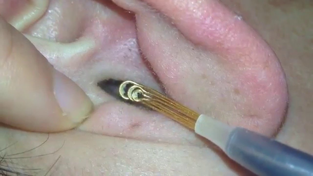 how to get rid of dry ear wax