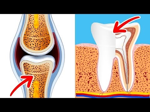 Foods which Can Boost Your Bones And Teeth Health