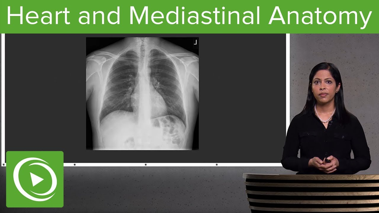 Heart and Mediastinal Anatomy – Radiology | Lecturio