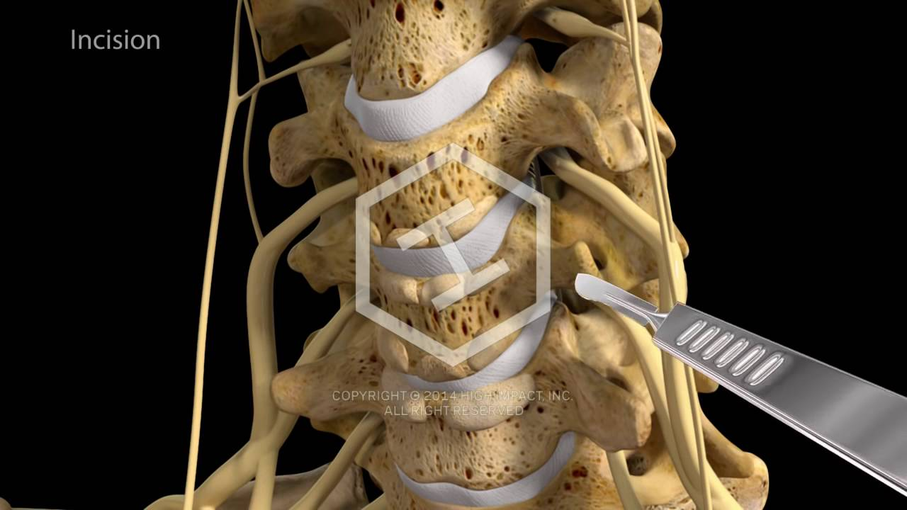 C5 C6 C7 Anterior Cervical Discectomy With Fusion Youtube