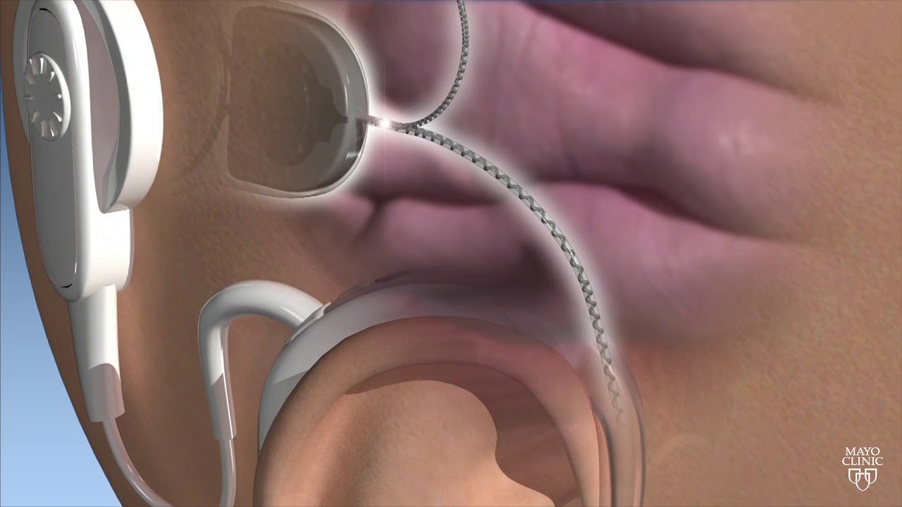 Mayo Clinic Minute: New technology for cochlear implants