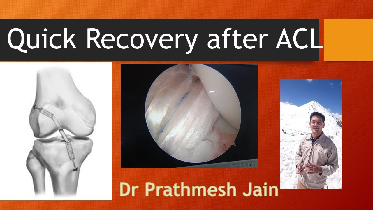 Fast  Recovery After  ACL Surgery at Advance Hospitals Ahmedabad #Shorts