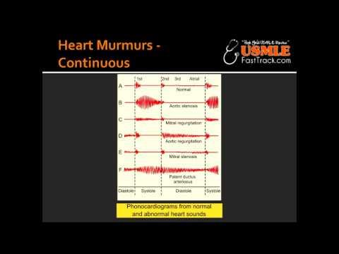 Heart Murmurs - Patent Ductus Arteriosus  (PDA)