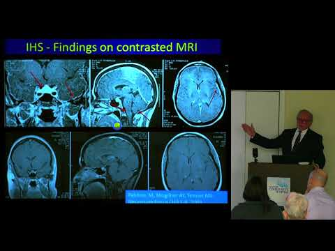 Headaches in the Chiari and EDS Population    Fraser C  Henderson Sr , MD