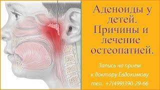 Аденоиды у детей.  Как лечить аденоиды, оперировать ли  Симптомы причины лечение остеопатией  отзывы