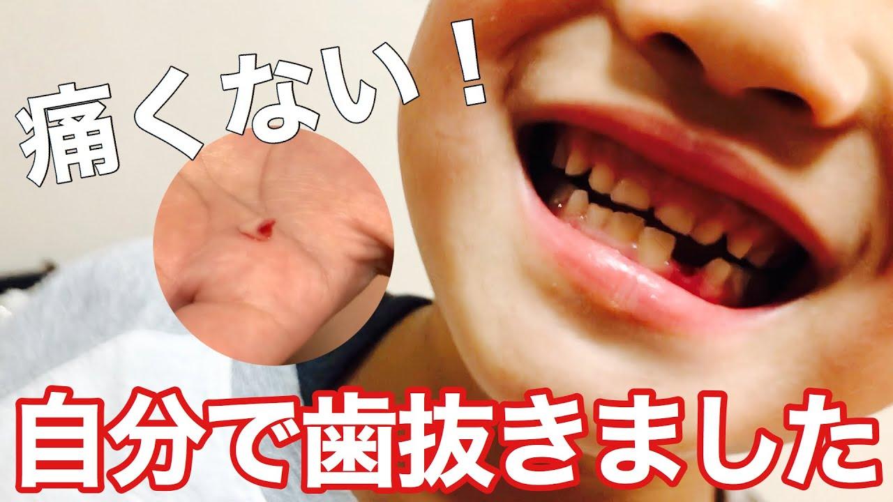 グラグラ の 歯 を 抜く 方法 痛く ない