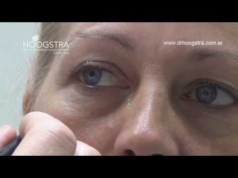 Blefaroplastía Transconjuntival y Relleno del Canal de la Lágrima (13005)