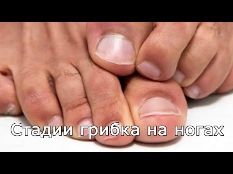 Стадии грибка на ногах