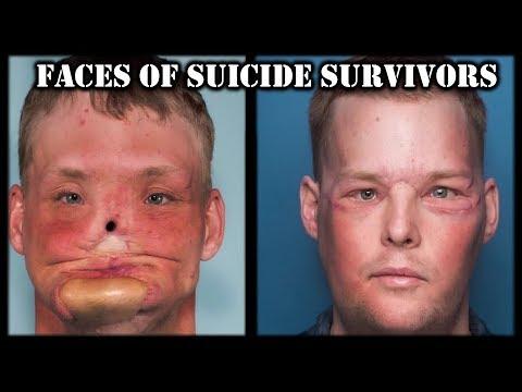 The Faces of Suicide Survivors