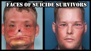 The Faces of Suicide Survivors