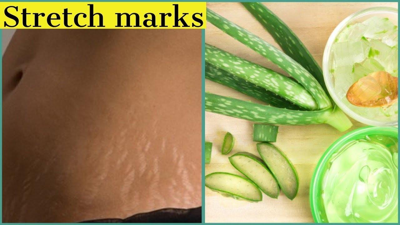 Stretch Mark Removal Stretchmarks Aloevera Diyessentials Youtube