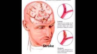 ENFERMEDADES NEUROLOGICAS