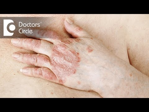 Drugs that worsens  Psoriasis in men - Dr. Tina Ramachander