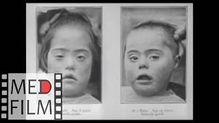 schizophrenia in children - how to identify  Шизофрения у детей - диагностика